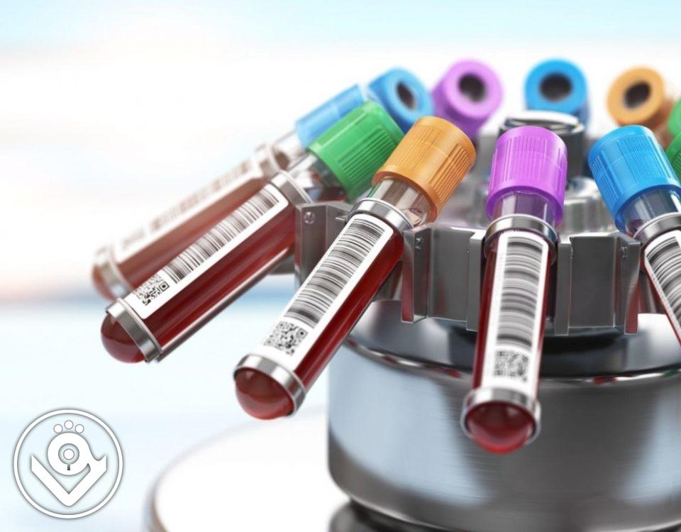 چگونه جواب آزمایش خون را بخوانیم؟